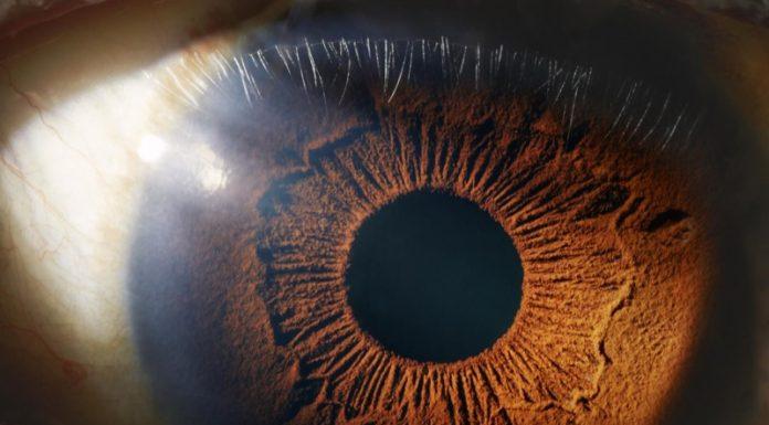 Боль глаз при сварке