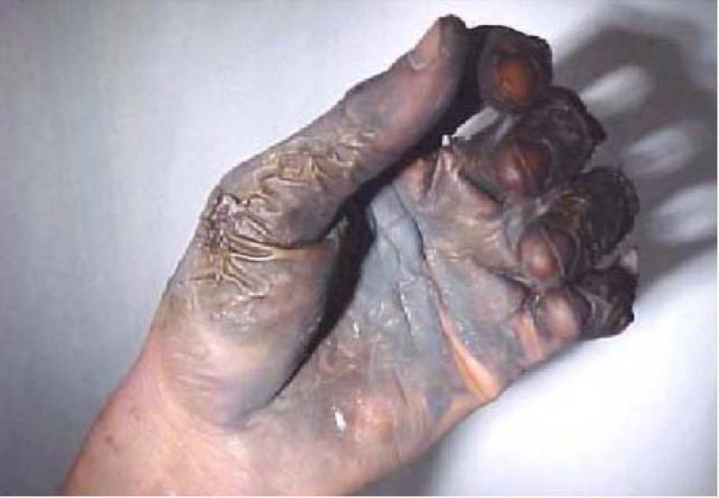 Обожженая сваркой рука
